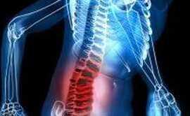 Sinelnikov dureri spinale