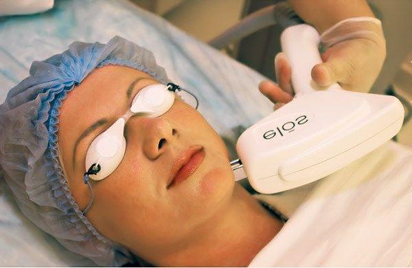 Edut laitteiston karvanpoistosta - yksityiskohtaisesti Elos-epiloinnista