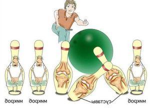 Identificação e controle da artrite reumatóide