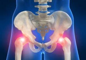 Tudo sobre artrite da articulação do quadril