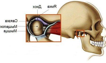 Bolest čelistního kloubu